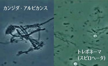 カンジダ・アルビカンス